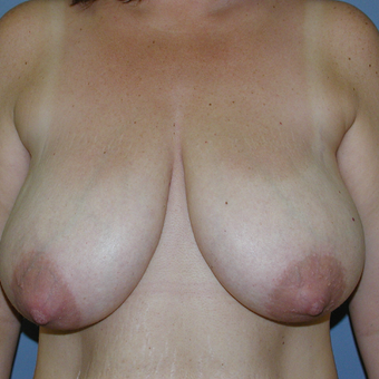 38  year old woman treated with Breast Reduction before 3059954
