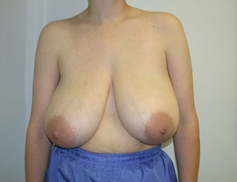 Breast Reduction before 1233000