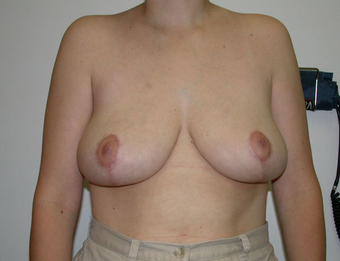 Breast Reduction after 1233000