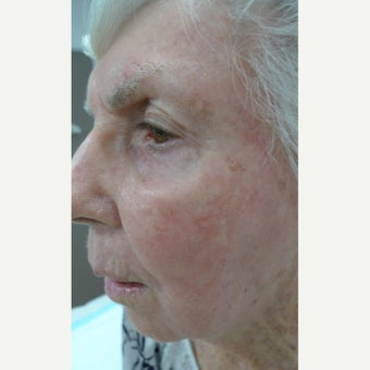 9 decades of sun damage removed with Fraxel.