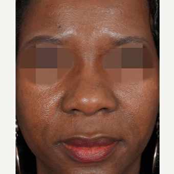 35-44 year old woman treated with Non Surgical Nose Job after 3244848