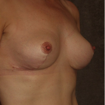 35-44 year old woman treated with Breast Implant Removal after 3377901