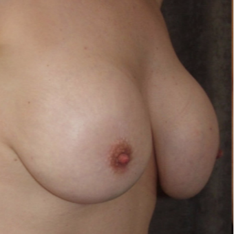 35-44 year old woman treated with Breast Implant Removal before 3377901
