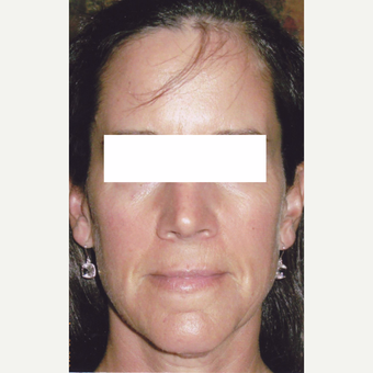 50 year old woman treated with Sculptra before 3055918
