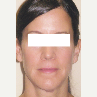 50 year old woman treated with Sculptra after 3055918
