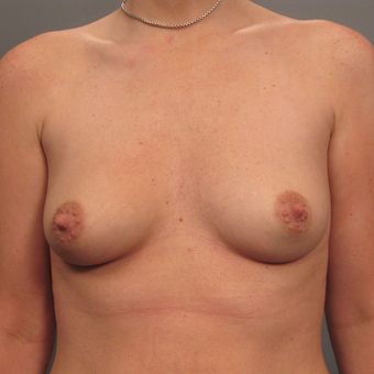 35-44 year old woman treated with Breast Augmentation with Strattice before 3293008