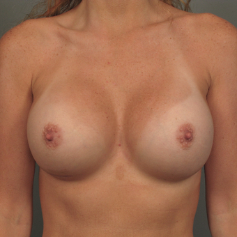 35-44 year old woman treated with Breast Augmentation with Strattice after 3293008
