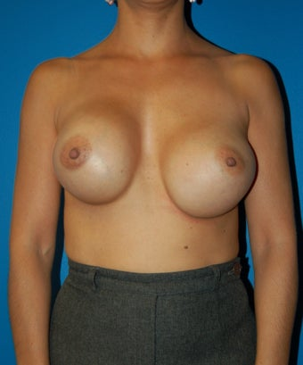 Breast Augmentation Revision Case  before 731285