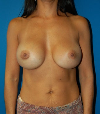 Breast Augmentation Revision Case  after 731285