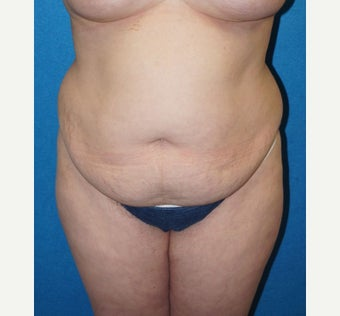 32 year old woman treated with Tummy Tuck before 2488331