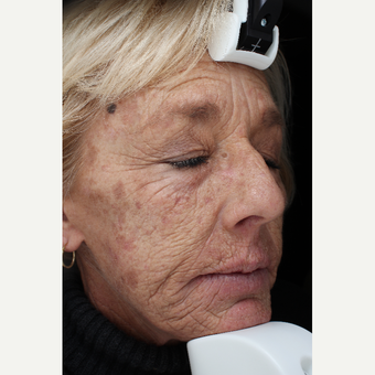 55-64 year old woman treated with Laser Resurfacing before 3710680