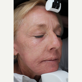 55-64 year old woman treated with Laser Resurfacing after 3710680
