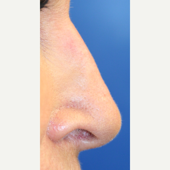 65-74 year old woman treated with Non Surgical Nose Job after 3022388