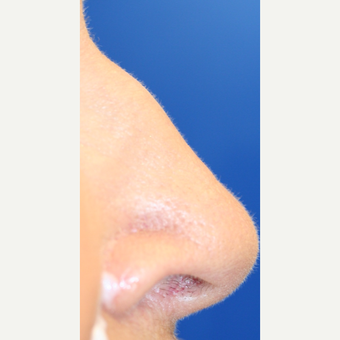 65-74 year old woman treated with Non Surgical Nose Job before 3022388