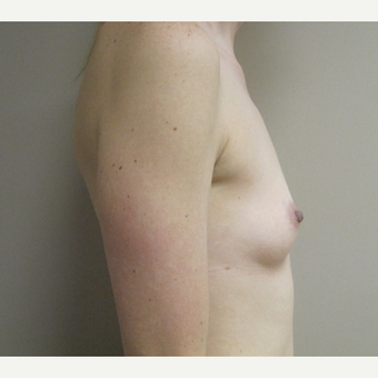 Breast Augmentation before 3530391