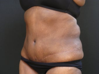 Liposuction abdominoplasty after 925155