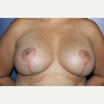 45-54 year old woman treated with Breast Lift with Implants after 3695340