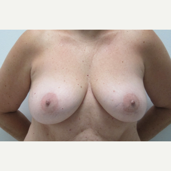 45-54 year old woman treated with Breast Lift with Implants before 3695340