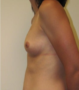 25-34 year old woman treated with Mommy Makeover 3174028