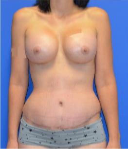 25-34 year old woman treated with Mommy Makeover after 3174028