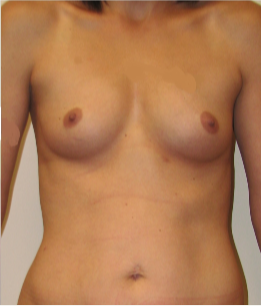 25-34 year old woman treated with Mommy Makeover before 3174028