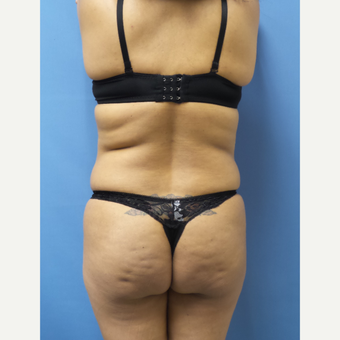 35-44 year old woman treated with Brazilian Butt Lift before 3696136