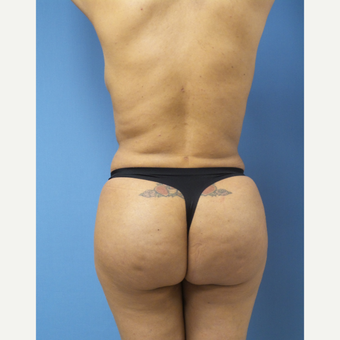 35-44 year old woman treated with Brazilian Butt Lift after 3696136