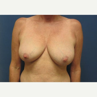 45-54 year old woman treated with Breast Reduction before 1818381