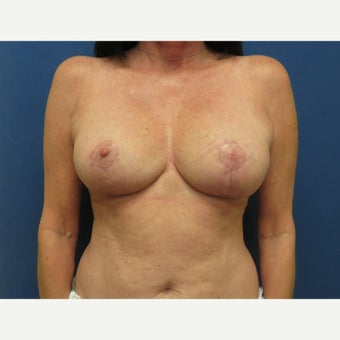 45-54 year old woman treated with Breast Reduction after 1818381