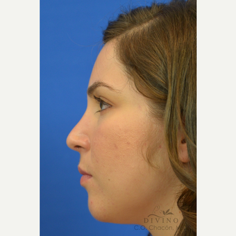25-34 year old woman treated with Rhinoplasty after 3391942