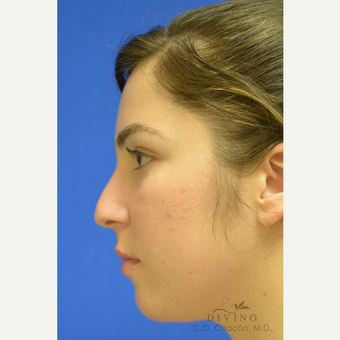 25-34 year old woman treated with Rhinoplasty before 3391942