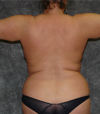 Vaser Liposuction before 928188