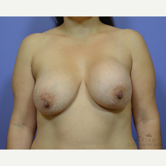 35-44 year old woman treated with Breast Lift with Implants before 3329416