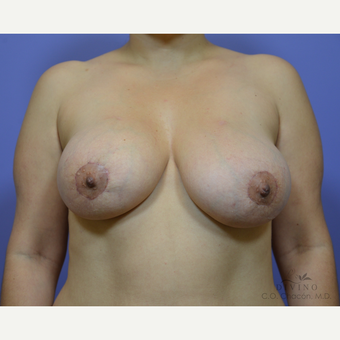 35-44 year old woman treated with Breast Lift with Implants after 3329416