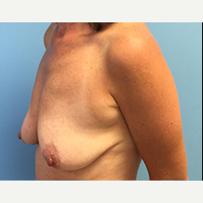 Breast Augmentation before 3278999