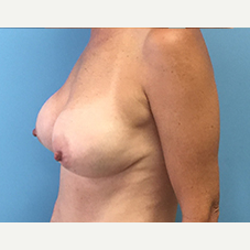 Breast Augmentation after 3278999