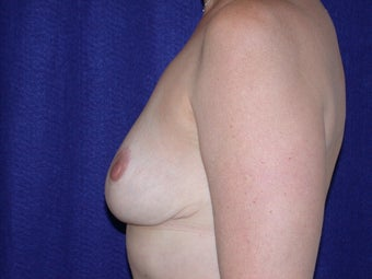 Breast Reduction after 205357