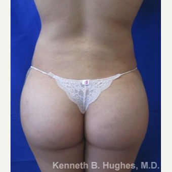 Liposuction after 3094180