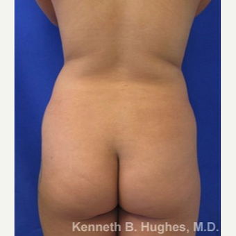 Liposuction before 3094180