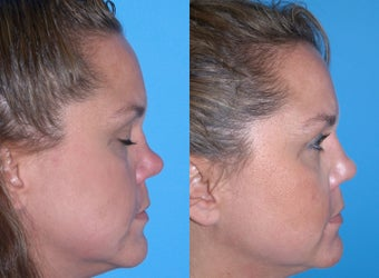 Non-surgical rhinoplasty    before 640430