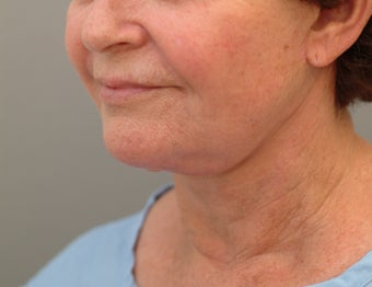 71 year old woman treated with Facelift revision. before 3652549