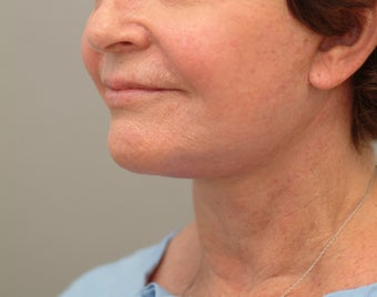 71 year old woman treated with Facelift revision. after 3652549
