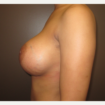 35-44 year old woman treated with Breast Augmentation after 3241942