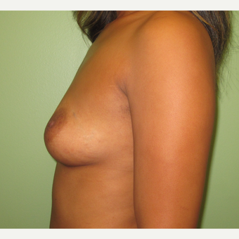 35-44 year old woman treated with Breast Augmentation before 3241942