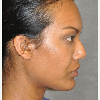 35-44 year old woman treated with Ultherapy after 3181765