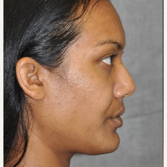 35-44 year old woman treated with Ultherapy before 3181765