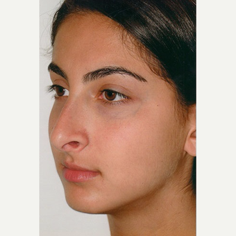 17 or under year old woman treated with Rhinoplasty before 3406273