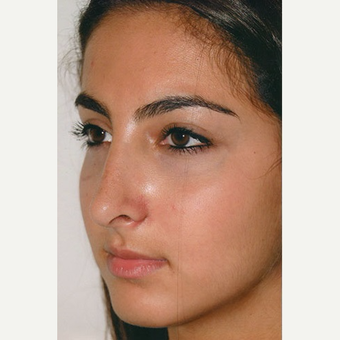 17 or under year old woman treated with Rhinoplasty after 3406273