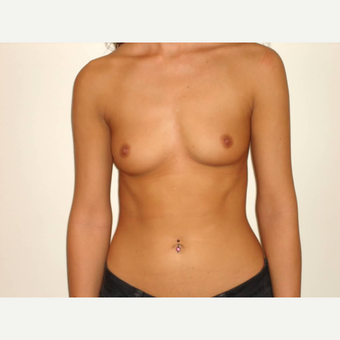 18-24 year old woman treated with Breast Augmentation before 3664587