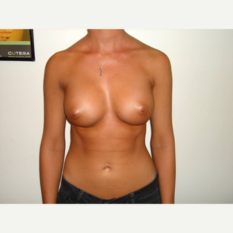 18-24 year old woman treated with Breast Augmentation after 3664587